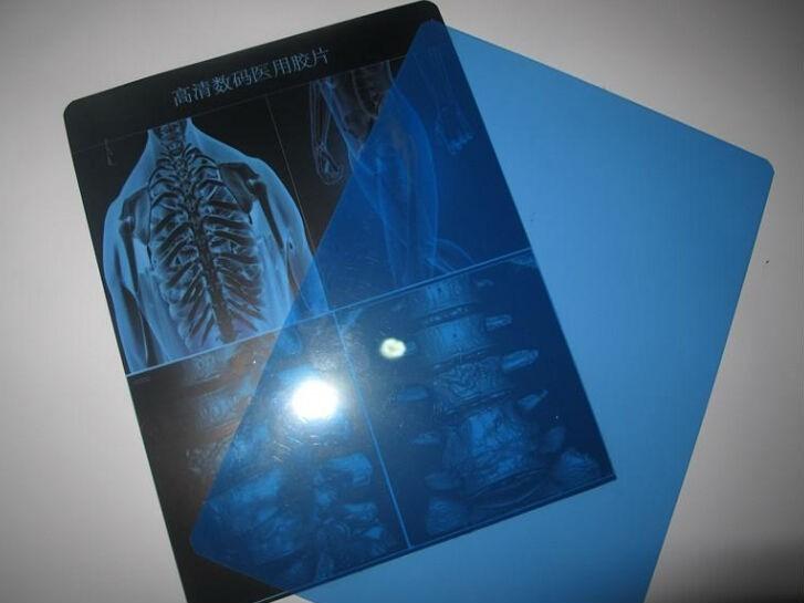Медицинская рентгеновская пленка