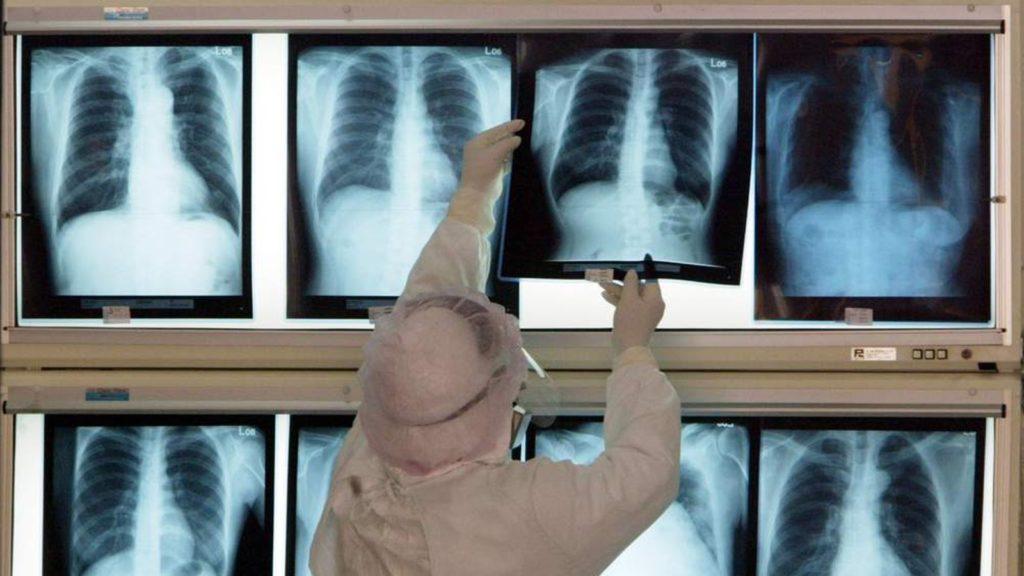 Пленочная рентгенография